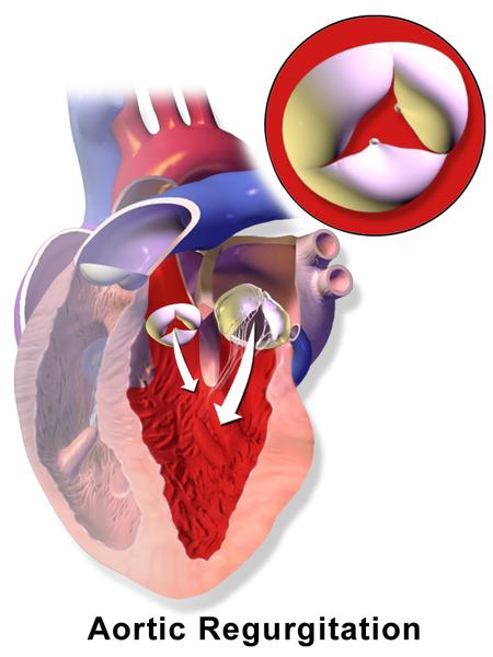 Aortic Reurgitation