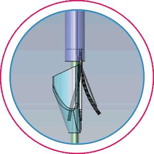 Cusper™ artificial cusp